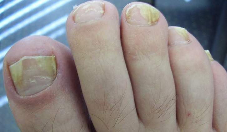 Грибок ногтей на ногах: фото