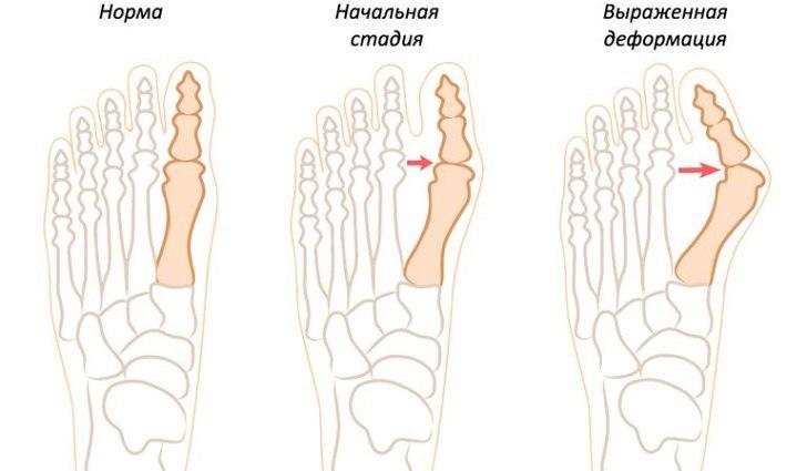 Косточка на ноге, развитие