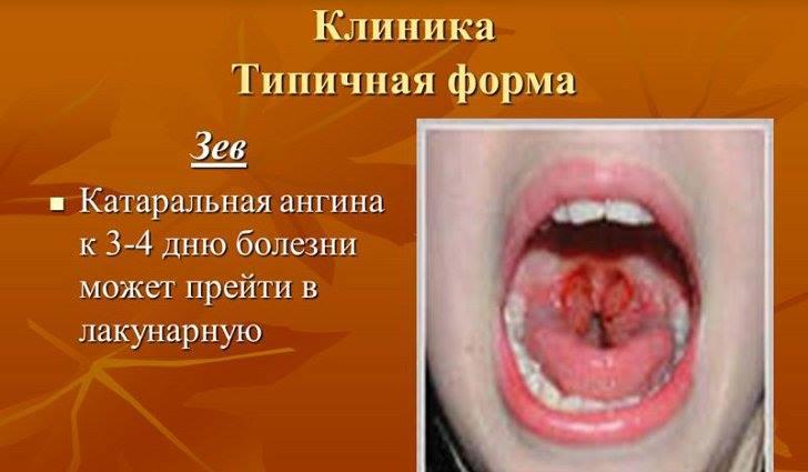 Виды ангины - катаральная ангина