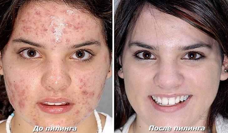 Скраб для жирной кожи лица