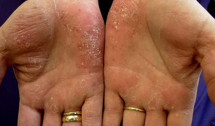 причины возникновения псориаза на теле симптомы