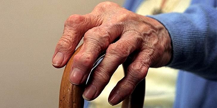 Симптомы полиартрита рук
