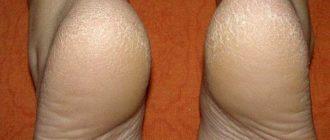 Лечение трещин на пятках в домашних условиях