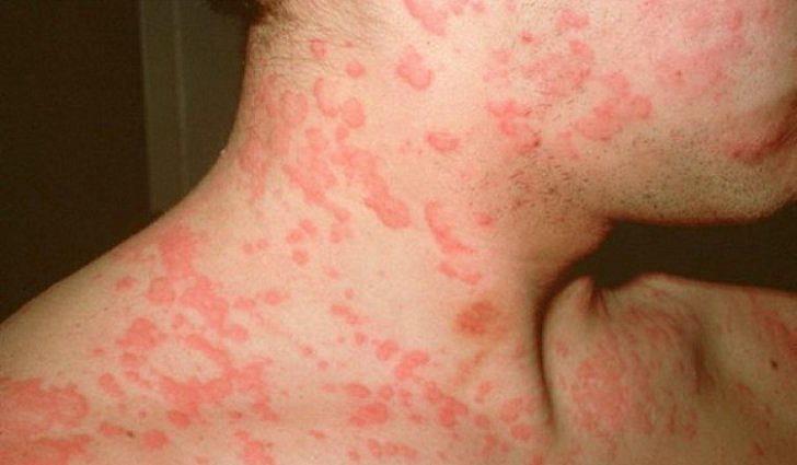 Аллергия на коже у взрослых, симптомы, диагностика, лечение