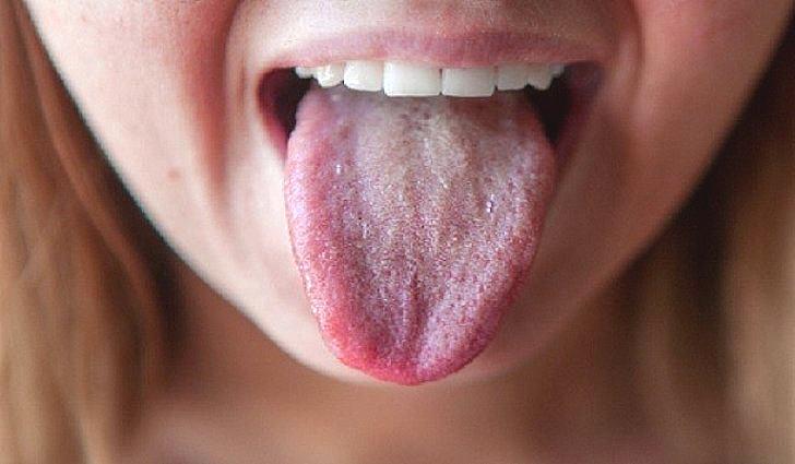 Белый налет на языке, причины, лечение у взрослых