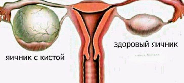 Кисты яичников: классификация диагностика лечение