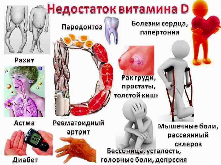 Каковы симптомы дефицита витамина D