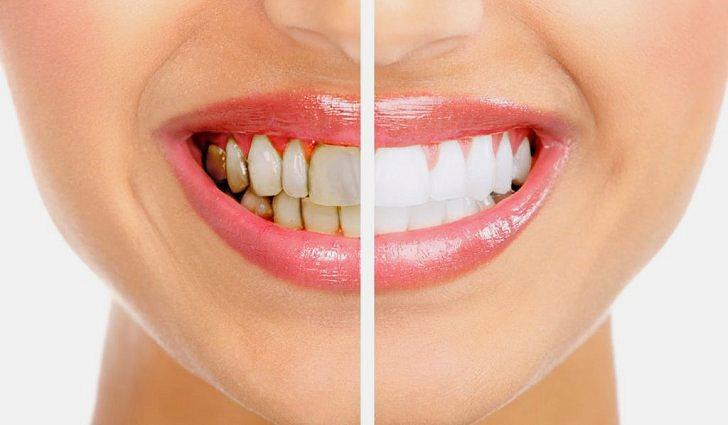 Ухудшает состояние зубов