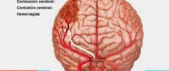 Церебральная атрофия головного мозга: диагностика, лечение, профилактика