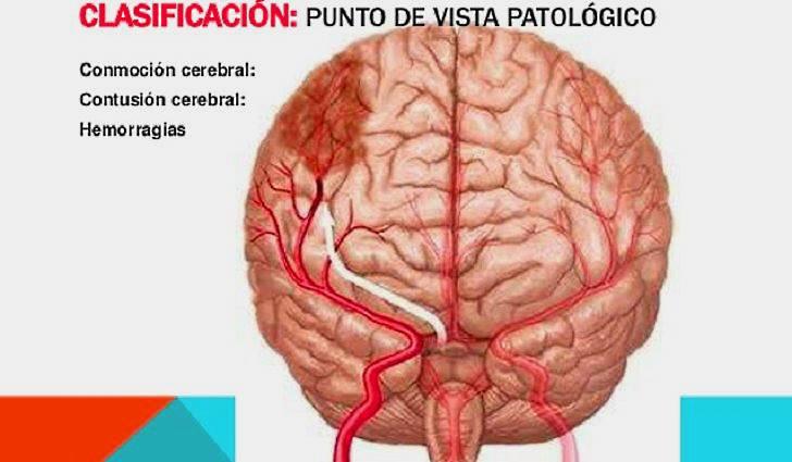 Кортикальная церебральная атрофия головного мозга