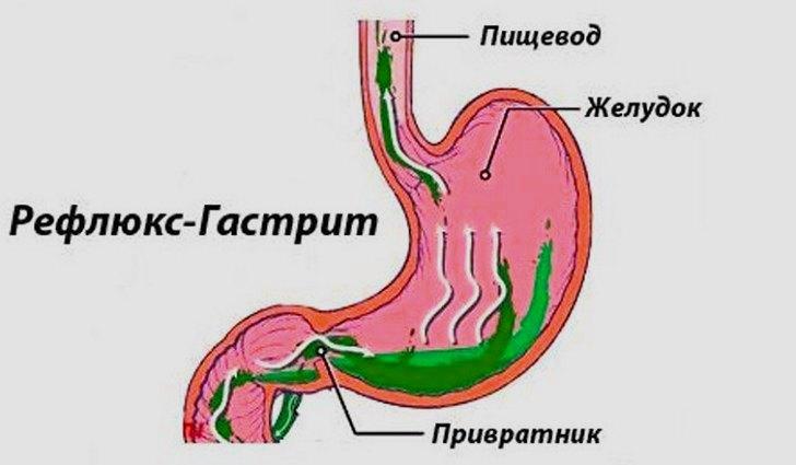 Осложнения желчнокаменной болезни