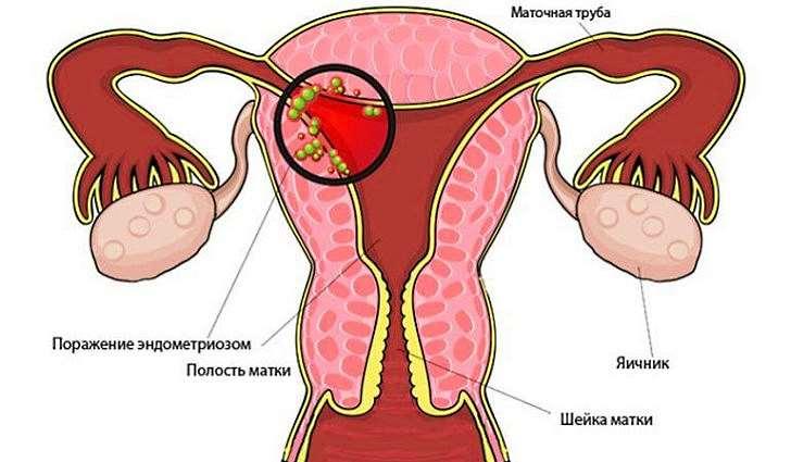 Причины развития эндометриоза
