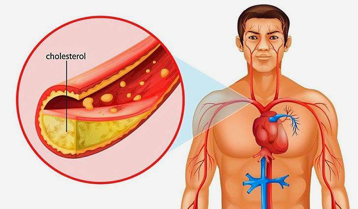 Причины возникновения желчнокаменной болезни
