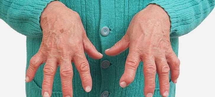 Ревматоидный артрит, как лечить ревматоидный артрит, больной ревматоидным артритом, боли при ревматоидном артрите, ревматоидный артрит клинические рекомендации, ревматоидный артрит причины, препараты при ревматоидном артрите, метотрексат применение при ревматоидном артрите, заболевание ревматоидный артрит, лечение ревматоидный, сустав воспаление лечение