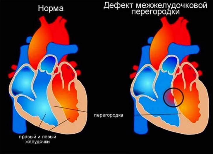 Дефект межжелудочковой перегородки (ДМЖП)