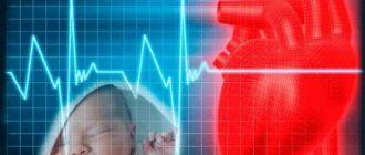 Врожденные пороки сердца - клинические рекомендации