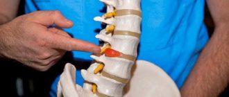 Межпозвонковая грыжа. Лечение межпозвонковой грыжи поясничного отдела без операции