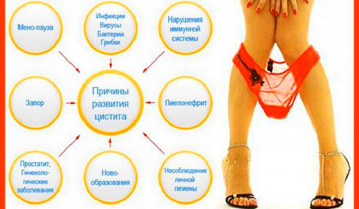 Причины возникновения заболевания мочевого пузыря
