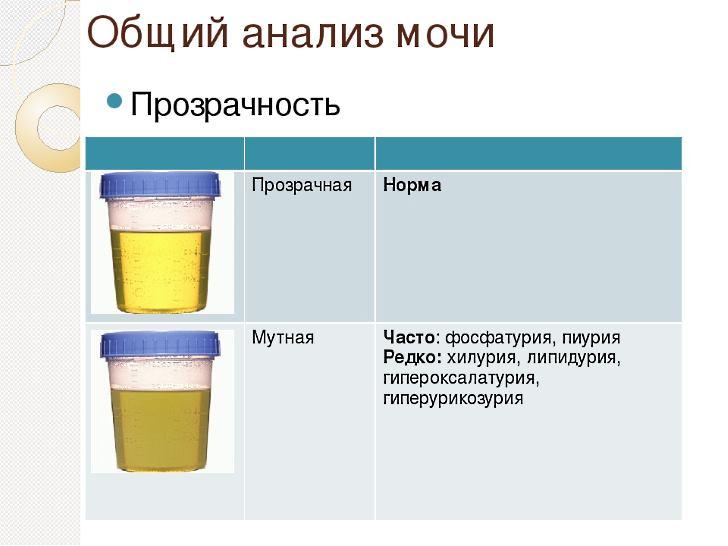 Цифры и факты о моче