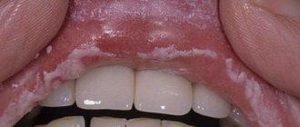 Лейкоплакия полости рта - симптомы и лечение фото