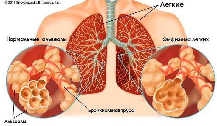 Механизм повреждения легких при эмфиземе