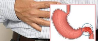 Воспаление двенадцатиперстной кишки: симптомы и лечение в домашних условиях