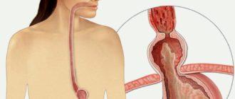 Грыжа пищевода: симптомы и лечение, диета, препараты, народные средства
