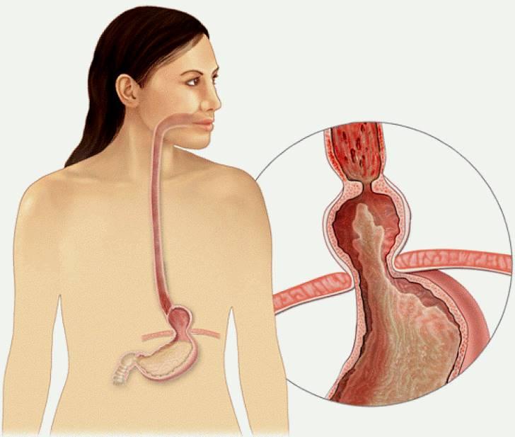 Грыжа пищевода симптомы и лечение диета