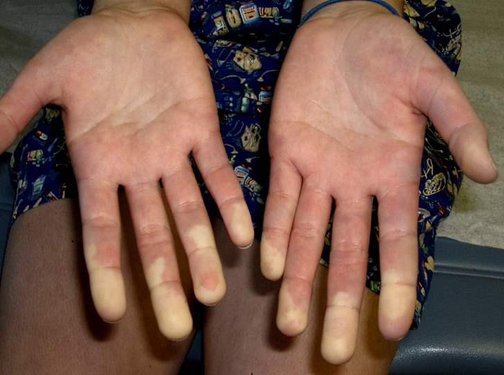 Локализованная склеродермия – клинические признаки, симптомы