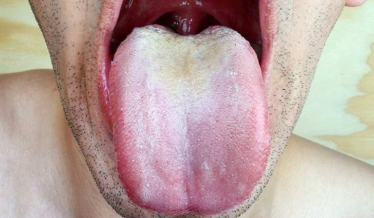 Симптомы кандидоза полости рта у взрослых