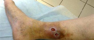 Трофическая язва нижних конечностей: лечение, препараты