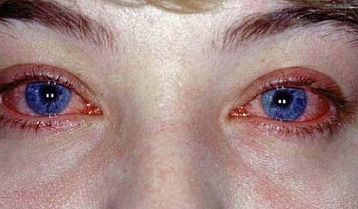 Поллинозный конъюнктивит причины возникновения симптомы лечение