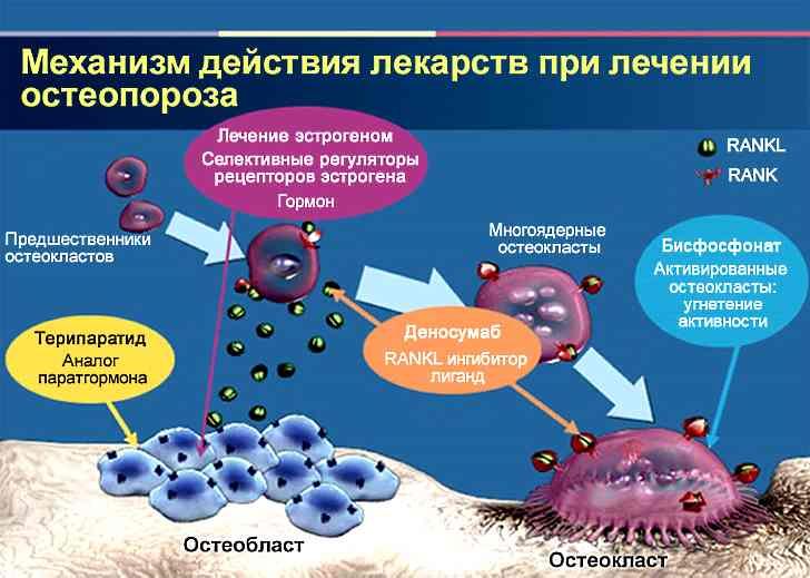 Лечение остеопороза суставов