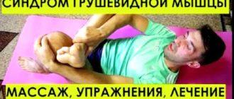 Как лечить синдром грушевидной мышцы в домашних условиях