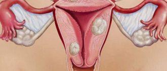 Лечение доброкачественной опухоли матки