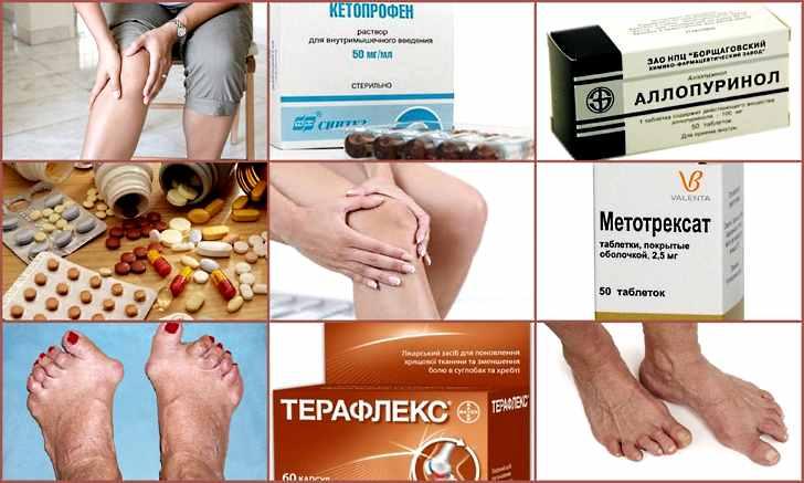 Препараты для лечения артрита суставов