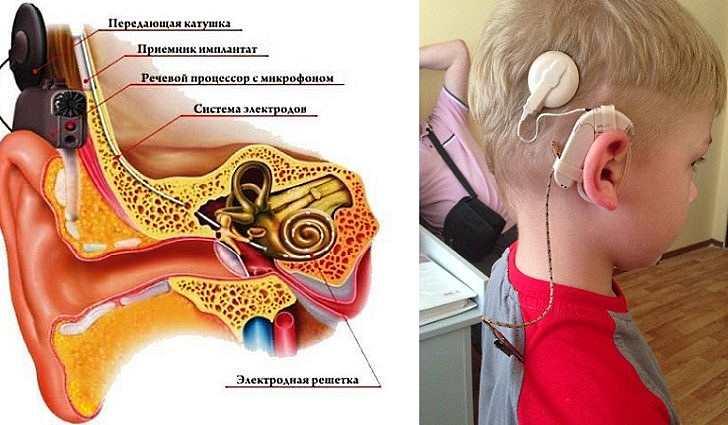 В каких случаях приходится отказаться от попыток вернуть слух и задуматься о слуховом аппарате?