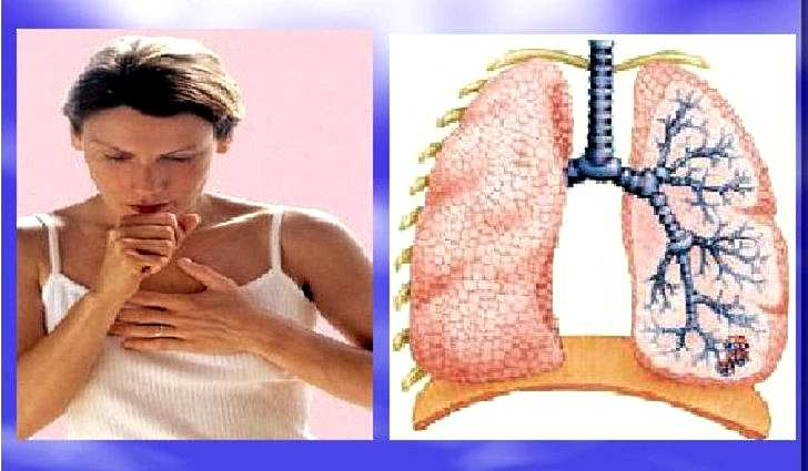 Бронхит, кашель, хроническое воспаление легких
