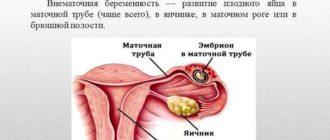 Что такое внематочная беременность и чем она опасна