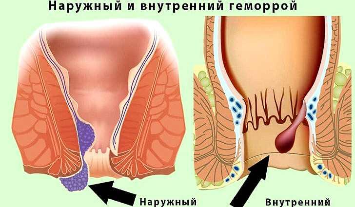 Геморрой, воспаление полости рта, горла
