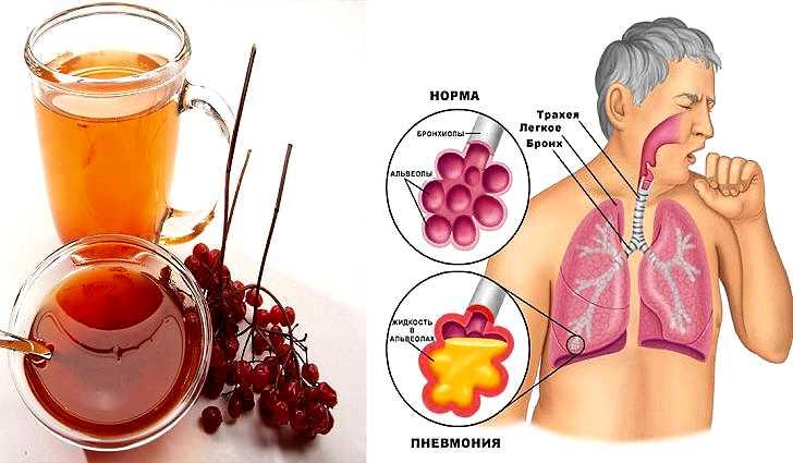 Как лечить народными средствами туберкулез, бронхит, пневмонию, кашель