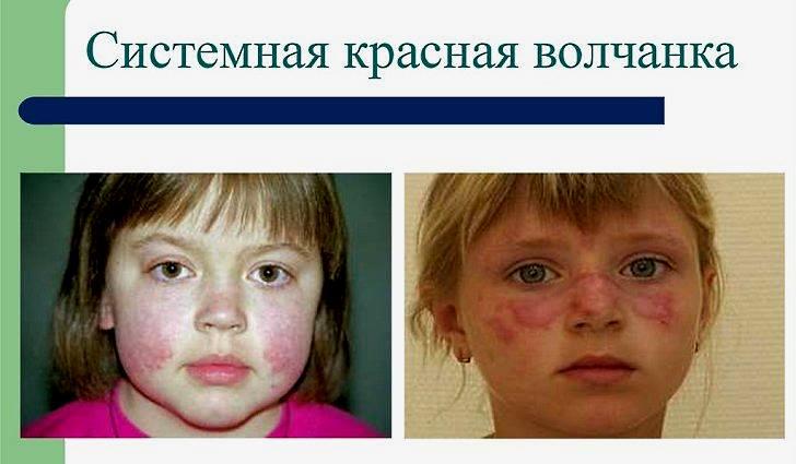 Волчанка что это за болезнь фото причины симптомы
