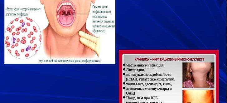 Как лечить инфекционный мононуклеоз у взрослых