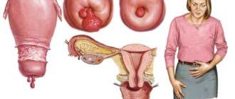 Как лечить полипы матки без операции