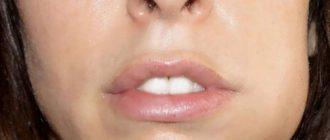 Какой антибиотик принимать при флюсе зуба у взрослого