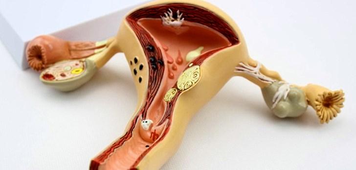 Причины образования полипов, симптомы заболевания