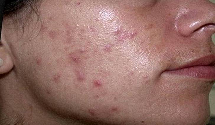Чем лечить демодекоз на лице у человека