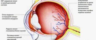 Что такое глаукома. Как лечить глаукому без операции