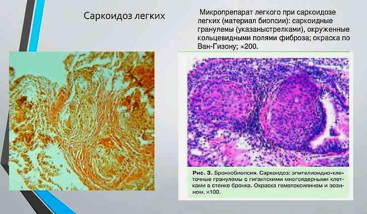 Что такое саркоидоз легких, симптомы и лечение