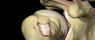 Дисторсия плечевого сустава, лечение, гимнастика